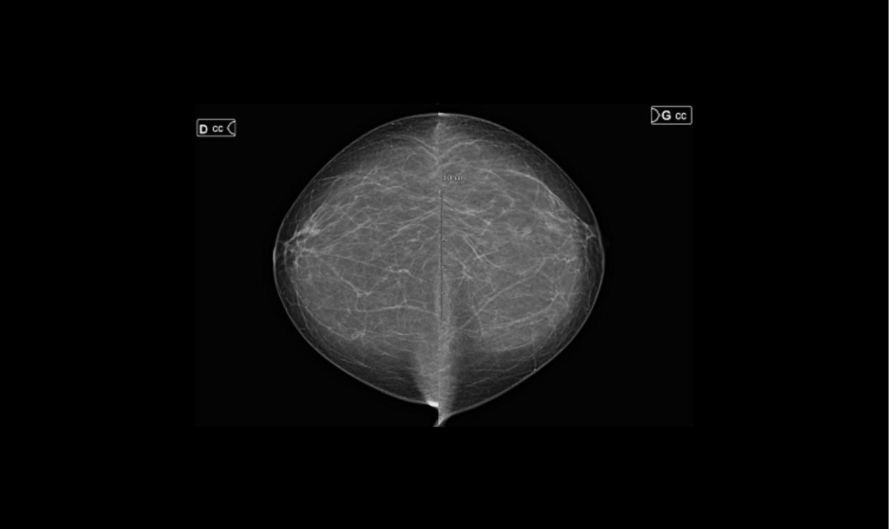 rdv Mammographie Examen Dunkerque